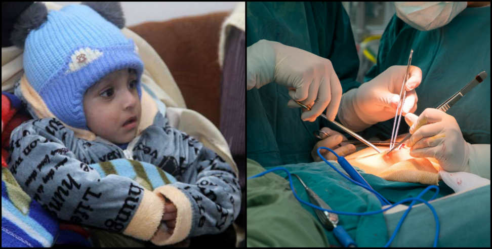 Image: Successful surgery of one year old child made a diet tube