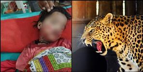 paurigarhwal news : Leopard attacked 3-year-old girl in Pauri Garhwal